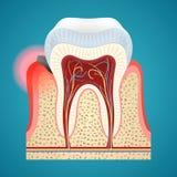 Start disease gum on human teeth Royalty Free Stock Image