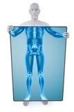 Statueröntgenstrahl Stockfoto