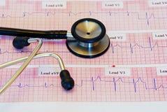 Stehoscope en un electrocardiograma Fotografía de archivo libre de regalías