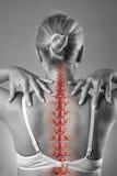 Stekelpijn, vrouw met rugpijn en pijn in de hals, zwart-witte foto met rode backbone stock foto