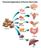 Stem cell_application. Explanation of stem cell application Stock Photo