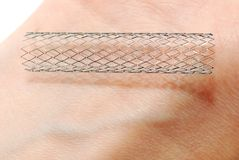 A stent. This is a stent laying on human skin.  A stent is a small mesh tube that's used to treat narrowed or weakened arteries in the body Royalty Free Stock Photos
