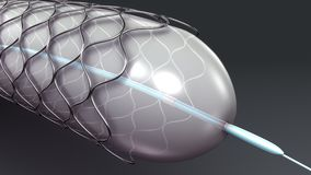 Stent illustration stock