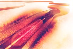 Stent angioplasty Obrazy Stock