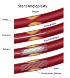 Stent angioplasty. Used to widen artery, eps10 Royalty Free Stock Photos