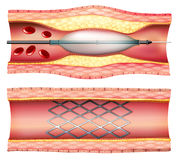 Stent Angioplasty Royalty Free Stock Images