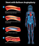 Stent angioplasty procedure Royalty Free Stock Images