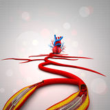 Stent angioplasty. Procedure with placing a balloon Royalty Free Stock Photo