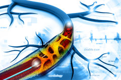 Stent angioplasty Royalty Free Stock Image