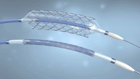 Stent and catheter for implantation into blood vessels with an empty and filled balloon. 3d illustration stock illustration