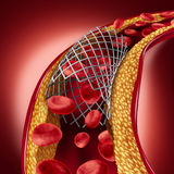 Stent Implant Concept. As a heart disease treatment symbol with an angioplasty procedure in an artery that has cholesterol plaque blockage being opened for Stock Photo