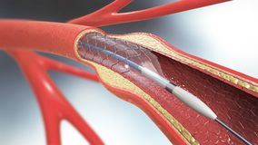 Stent implantation for supporting blood circulation into blood vessels. 3d illustration of stent implantation for supporting blood circulation into blood vessels stock illustration