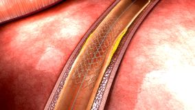 Stent Stock Images