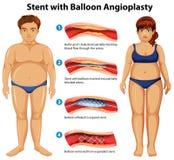 Stent z balonowym angioplasty Zdjęcia Royalty Free