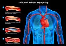 Stent z balonowym angioplasty Zdjęcia Stock