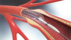 Stenteinpflanzung für Unterstützungsdurchblutung in Blutgefäße Stockfotos
