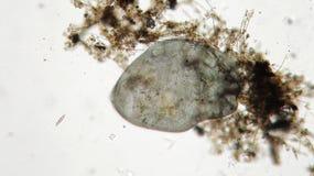 Stentor或喇叭微动物过滤器哺养,异养原虫有睫 免版税库存图片