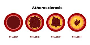 Step of Atherosclerosis graphic vector . fat stuck in the blood artery cholesterol stock images
