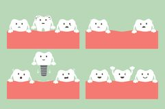 Step of caries to dental implant with crown. Tooth cartoon vector flat style for design - step of caries to dental implant with crown, dental care concept Vector Illustration