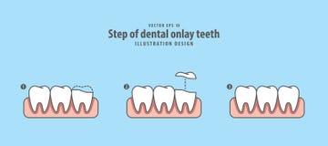 Step of dental onlay tooth illustration vector on blue backgroun. D. Dental concept Stock Photos