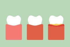 Step of gum disease Royalty Free Stock Image