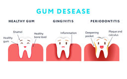 Step of gum disease. Healthy tooth and gingivitis. Cute cartoon design, illustration  on blue background. Dental care concept Stock Photos