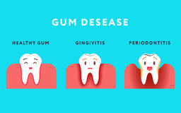 Step of gum disease. Healthy tooth and gingivitis.. Cute cartoon design, illustration isolated on blue background. Dental care concept Stock Photos