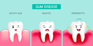 Step of gum disease. Healthy tooth and gingivitis. Royalty Free Stock Images