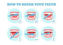 Step-by-step scheme, instructions on how to brush your teeth properly. Infographics toothbrush, toothpaste for oral hygiene. Clean healthy, white teeth vector illustration