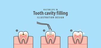 Step of tooth cavity filling cross-section structure inside toot. H illustration vector on blue background. Dental concept Stock Images