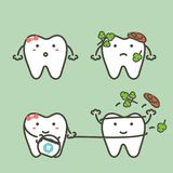 Step of tooth cleaning food stuck in teeth by floss to protection decay tooth, before and after Royalty Free Stock Photo