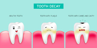 Step of tooth decay formation. Healthy tooth, forming dental plaque and finally caries and cavity. Cute cartoon design, illustration isolated on green Royalty Free Stock Photo