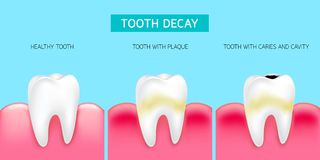 Step of tooth decay formation. Healthy tooth, forming dental plaque and finally caries and cavity. Illustration info-graphic isolated on blue background. Dental Royalty Free Stock Photography