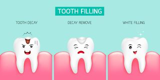 Step of tooth filling. Tooth decay, decay remove and white filling. Cute cartoon design, illustration isolated on green background. Dental care concept Stock Photo