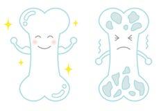 Sterk been en osteoporose royalty-vrije illustratie