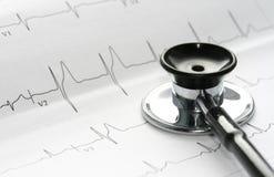 Stethoscoop en electrocardiogram Stock Foto