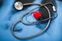 Stethoscoop en hart op Röntgenstraal Stock Foto's