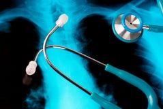 Stethoscoop op een Röntgenstraal Royalty-vrije Stock Foto's