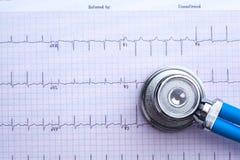 Stethoscope on cardiogram sheet Royalty Free Stock Photos