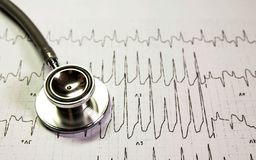 Stethoscope on cardiogram. Stethoscope.charts and graphpaper on table.Analaytic research data and business company meeting concept royalty free stock photo