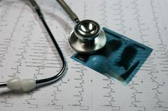 Stethoscope on cardiogram. Stethoscope.charts and graphpaper on table.Analaytic research data and business company meeting concept stock image