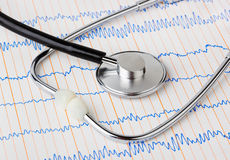 Stethoscope on ecg Stock Photo