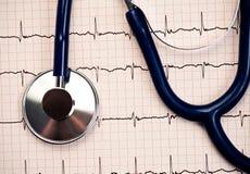 Stethoscope on EKG Royalty Free Stock Images