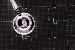 Stethoscope on the electrocardiogram ECG graph top view royalty free stock images
