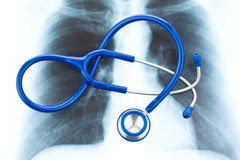 Stethoscope and X-ray. Stock Image