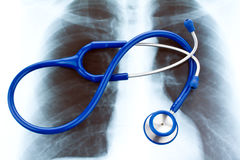 Stethoscope and X-ray. Health. Stock Photos