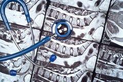 Stethosope on MRI Royalty Free Stock Photography