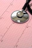 Stetoscopio sopra il grafico di EKG Fotografia Stock