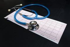 Stetoskop och cardiogram Fotografering för Bildbyråer
