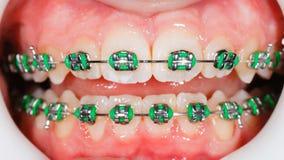 Steunen op tanden stock fotografie